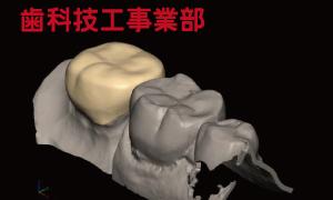 歯科技工事業部